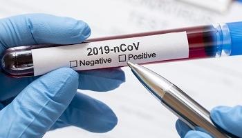 Проблема единого порядка при лечении коронавируса: унифицированных людей нет